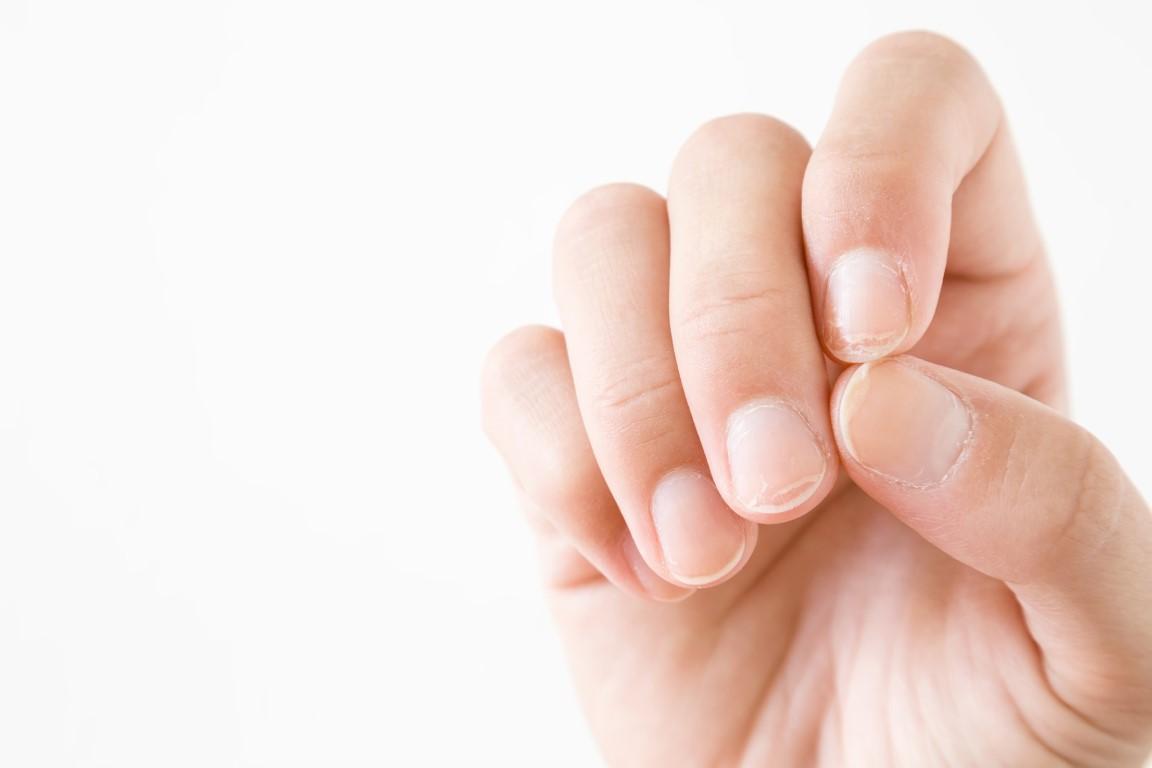 Was kann ich gegen brüchige oder verfärbte Fingernägel tun?