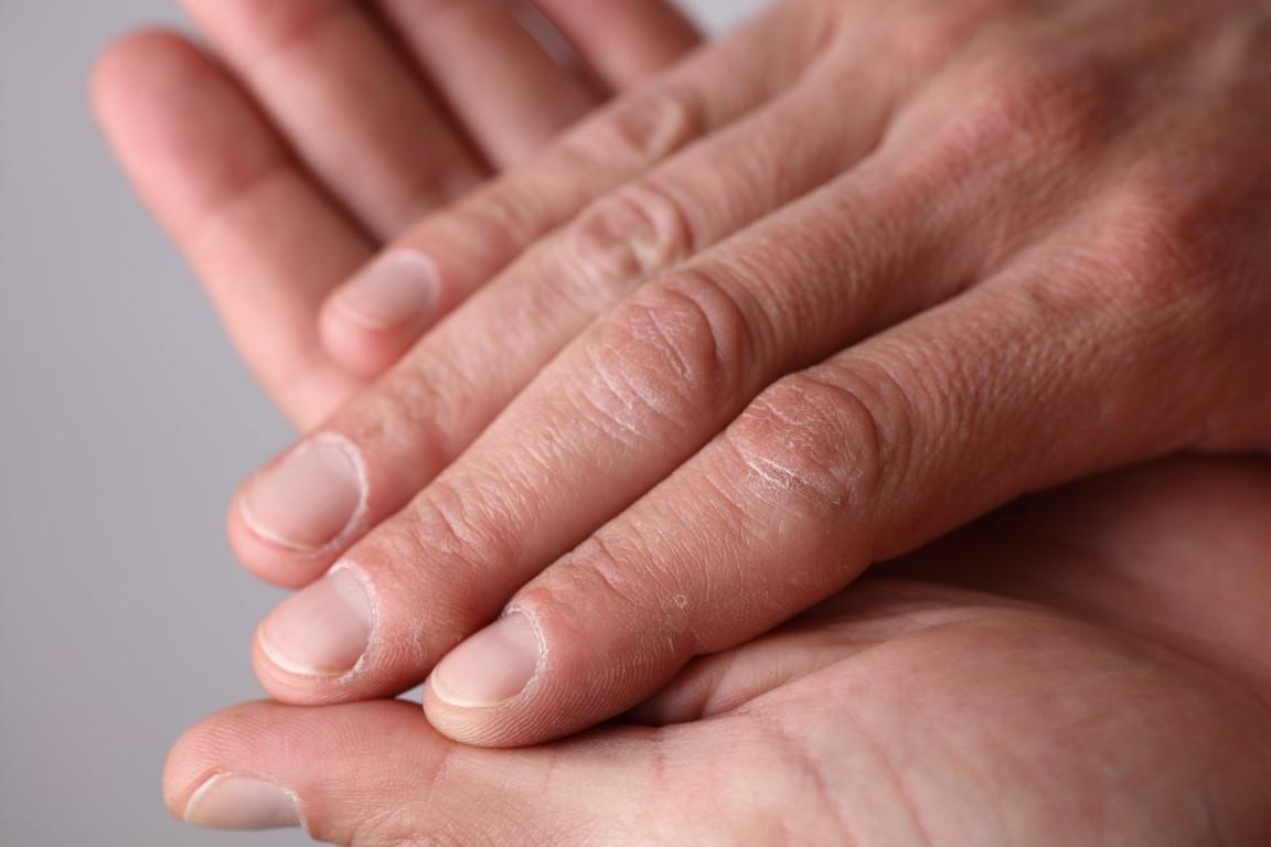 Was kann ich gegen trockene oder empfindliche Haut tun?