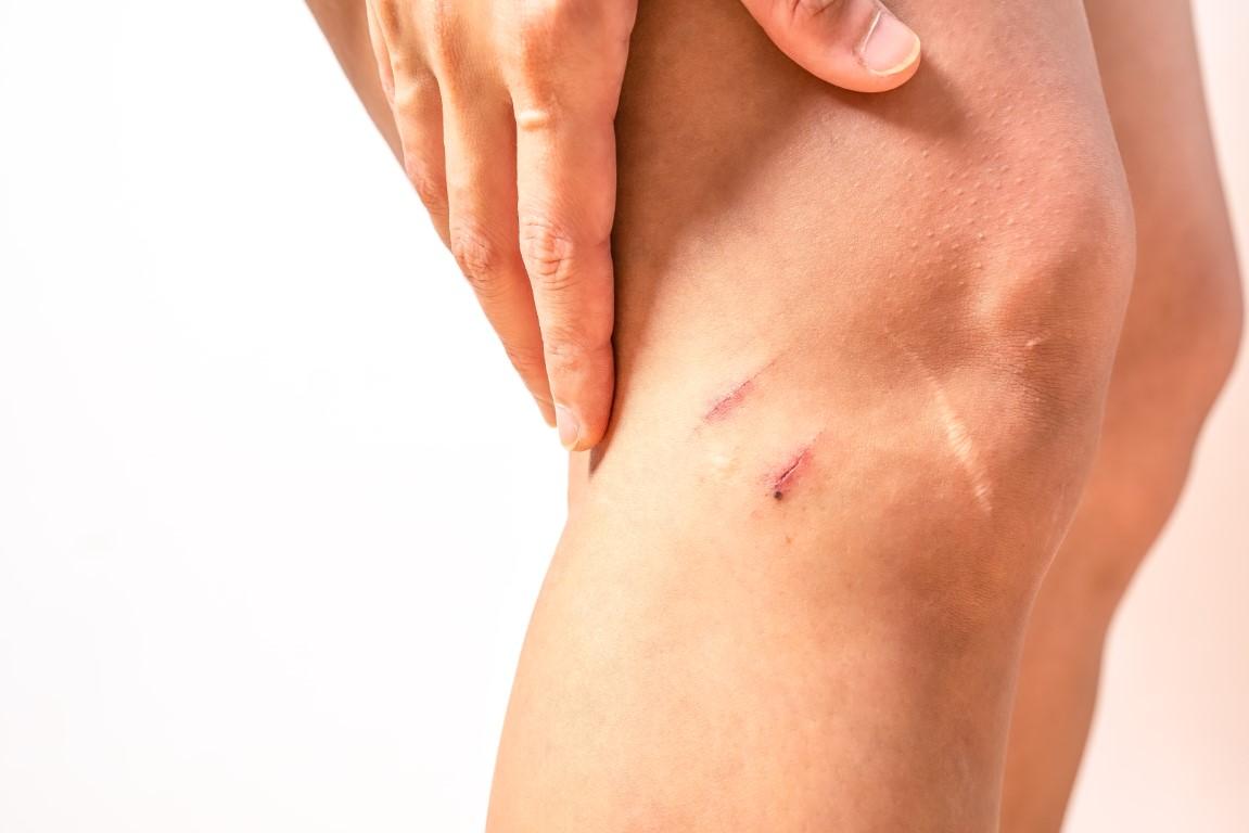 Wie kann ich Verletzungen vermeiden?
