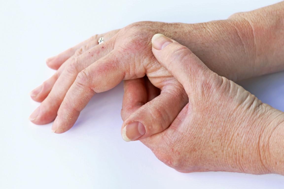 Hand-Fuß-Syndrom